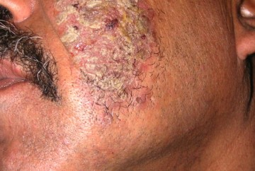 The Blue Waffles Disease Images In Men And Women. It is a disease of extreme kind and those who don't take it seriously can themselves see the blue waffles disease pics when this disease is not treated timely.
